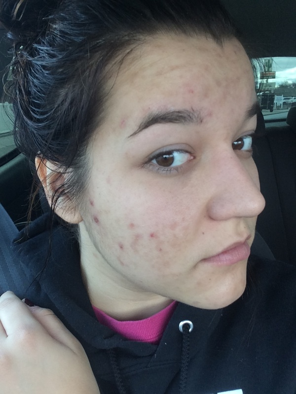 Accutane Update 2 Months Down Molly Loves Makeup